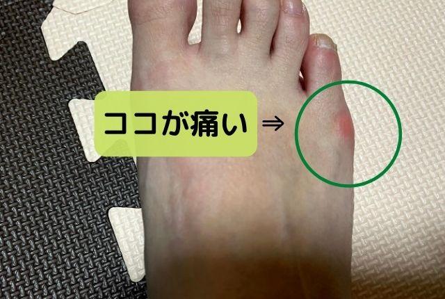 足の小指の付け根が痛い
