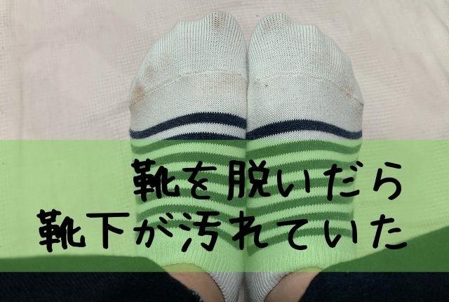 革靴で靴下が汚れる。私はコレでついた色を簡単に落とします